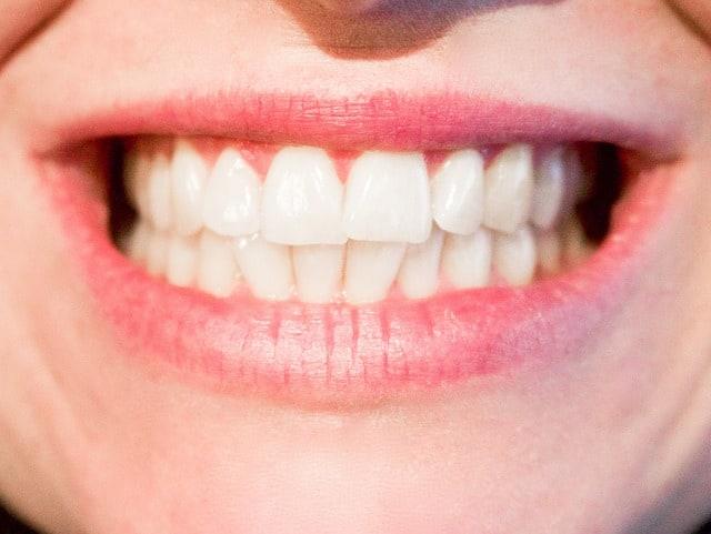 הלבנת שיניים באמצעות צמחים